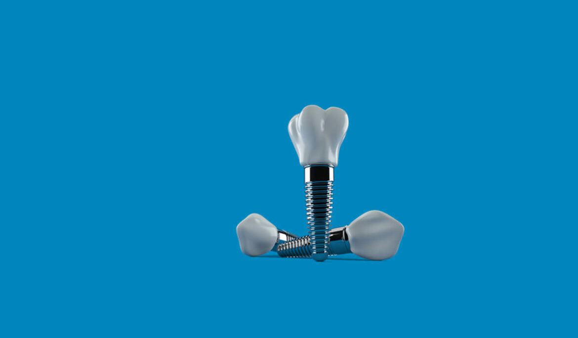 What are mini dental implants – Cost, and Pros and Cons