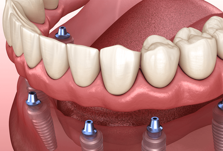 Implant Denture Voss Dental