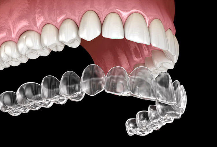 fix crowded teeth with Invisalign