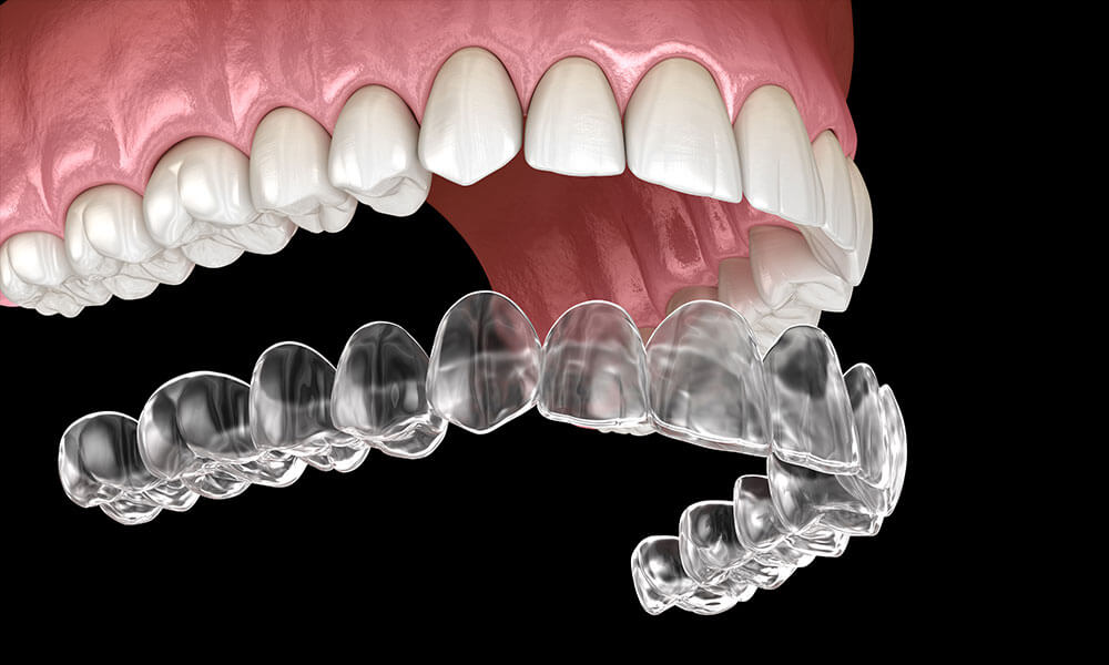 How Much Does Invisalign Cost In Houston?