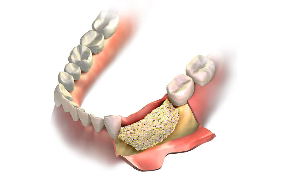 Dental Bone Graft and It Cost