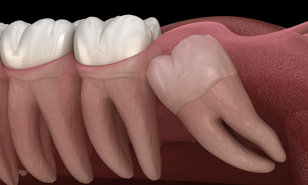 What Is The Wisdom Teeth Removal Cost?