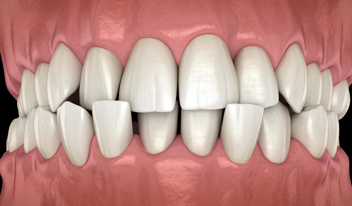 What is Malocclusion of the Teeth ?