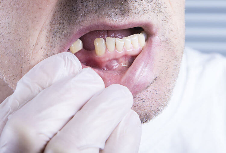missing tooth treatment