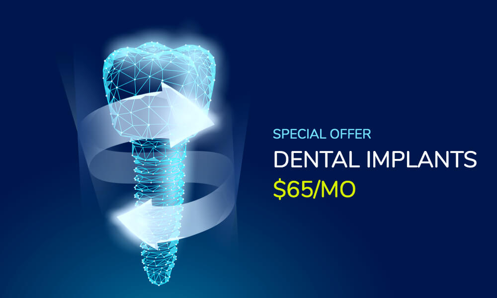Am I a candidate for same Day Dental Implants
