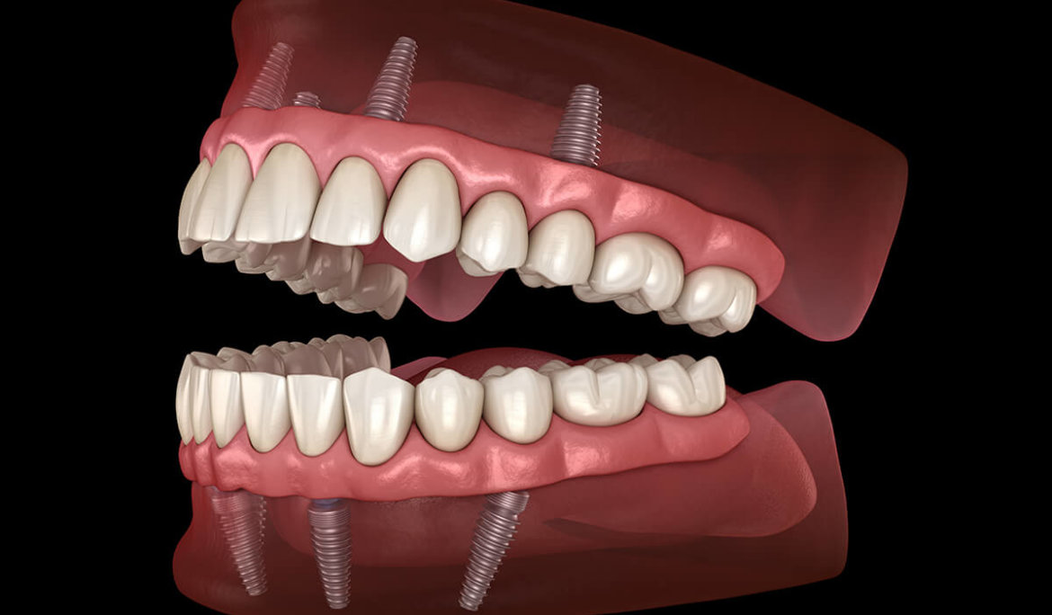 ALL-ON-4 Dental Implants Procedure and Cost IN HOUSTON, TX