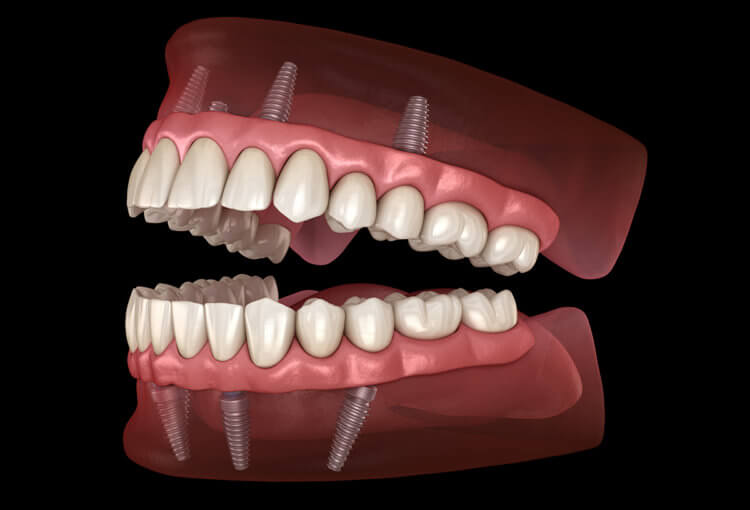 all on 4 dental implants problems