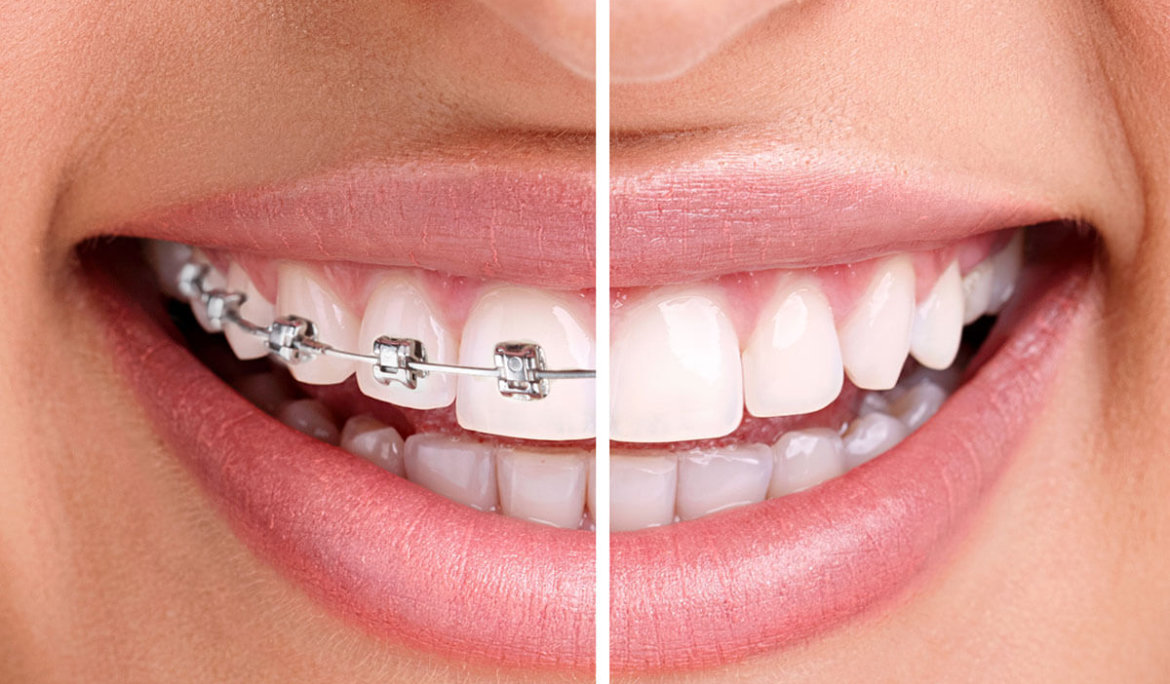 Is There a Way To Straighten Teeth Without Braces?