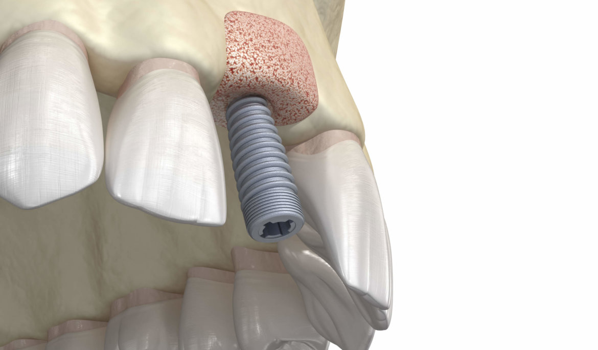 What Is Bone Grafting For Dental Implants