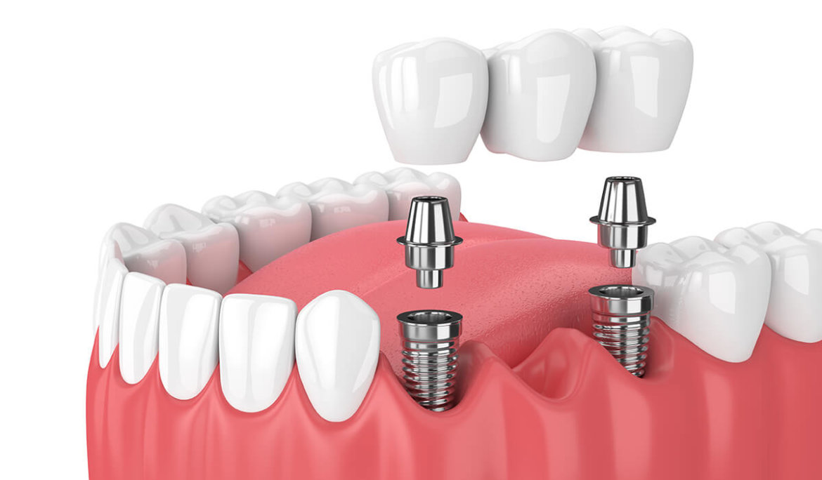 Dental Bridges, Benefits, Cost, And Procedure