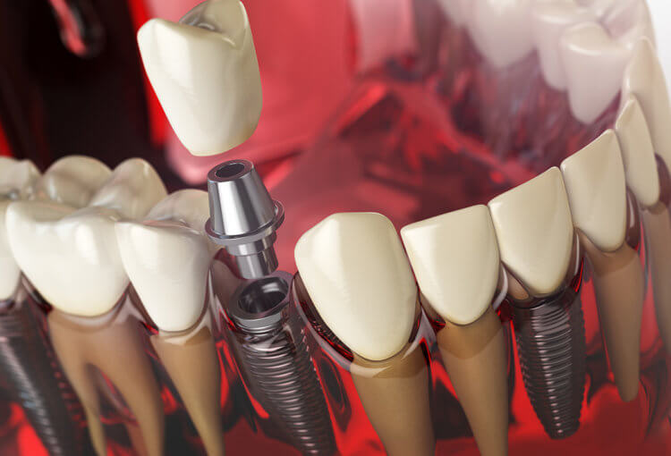 Bleeding Around Dental Implant