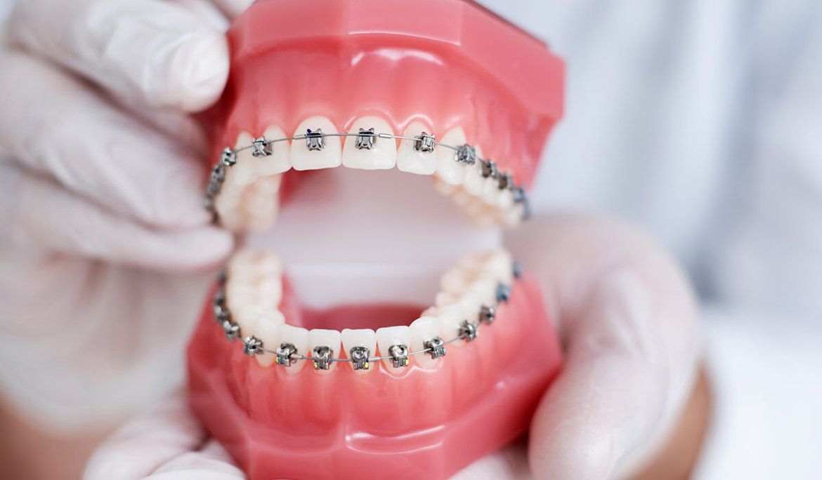 What You Need to Know Before Getting Traditional Metal Braces