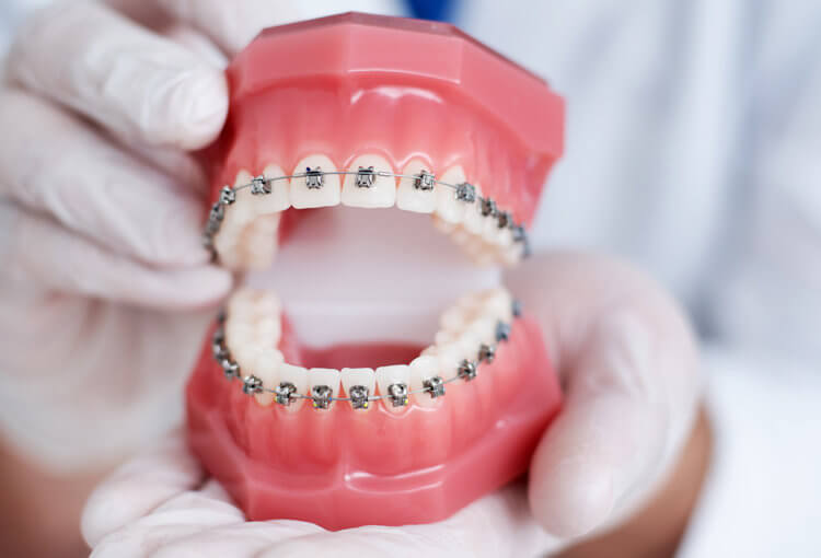 traditional metal braces Houston Texas