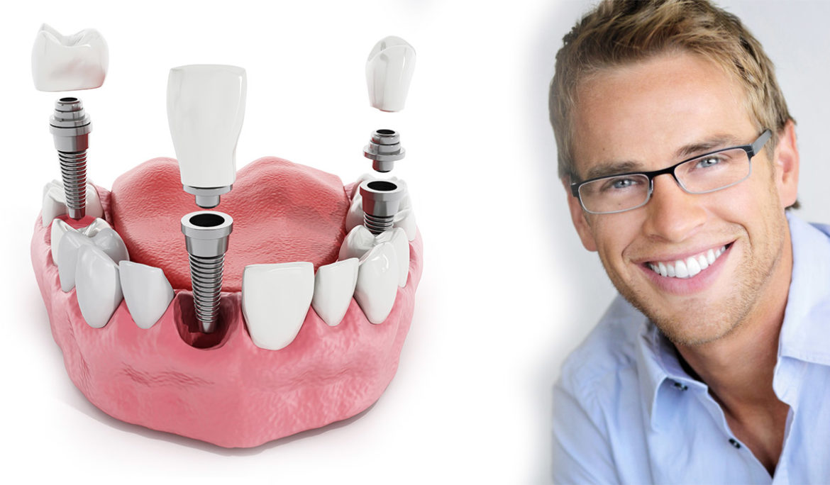 Where to Get Affordable Dental Implants in Houston, TX