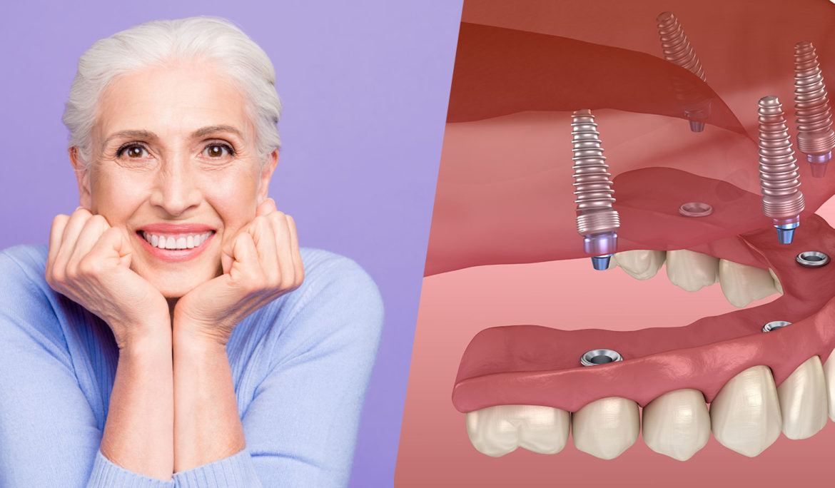 A Complete guide to full mouth dental implants in houston, Texas
