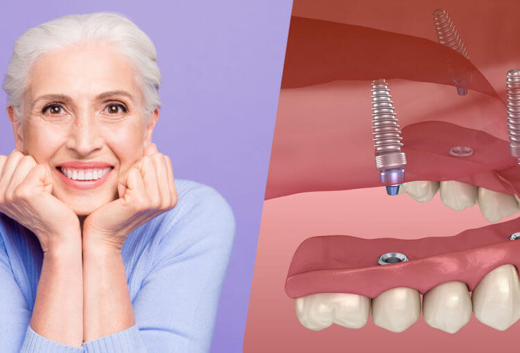 full mouth dental implants Houston Texas