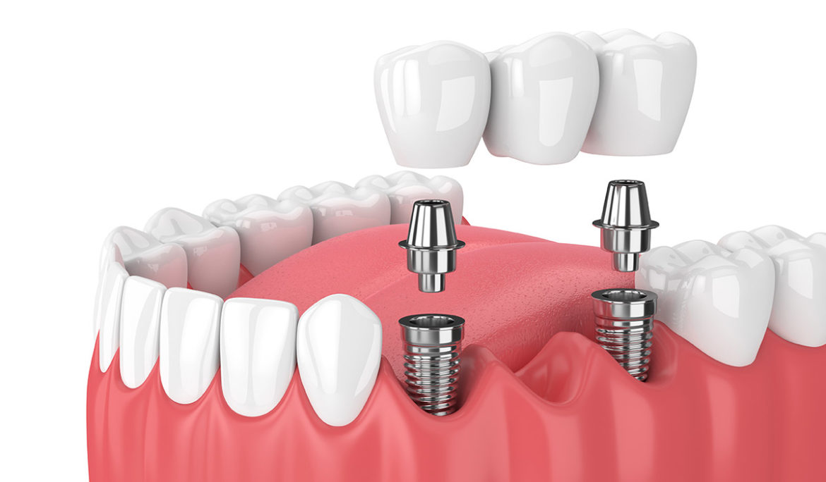 How Much Does a Dental Bridge Cost with Insurance