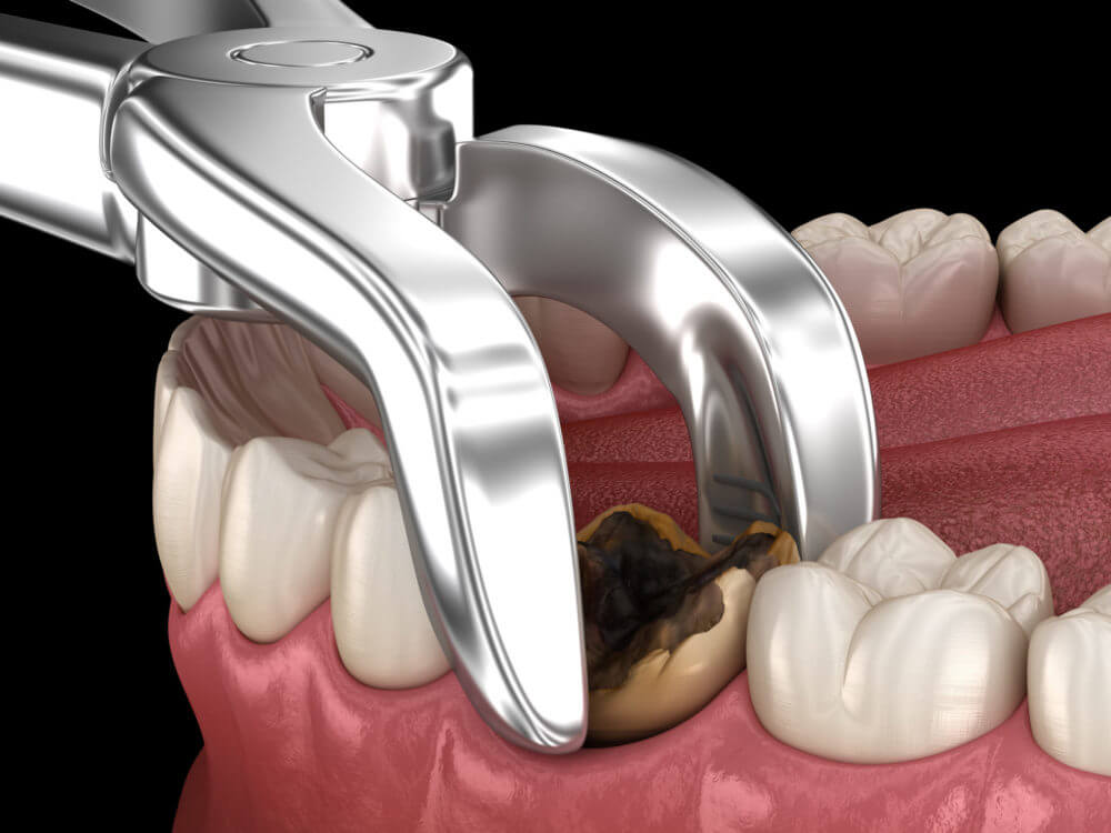 Tooth Extractions: Healing Stages And Recovery Times
