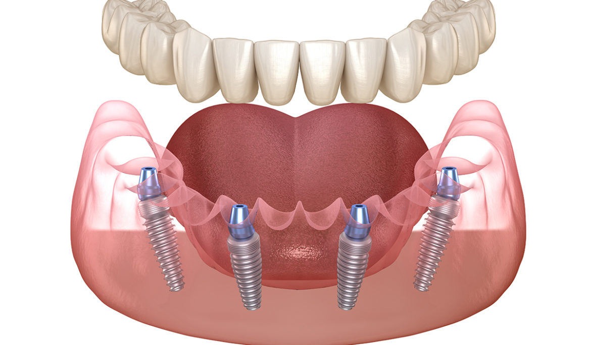 What are the problems with all on 4 dental implants