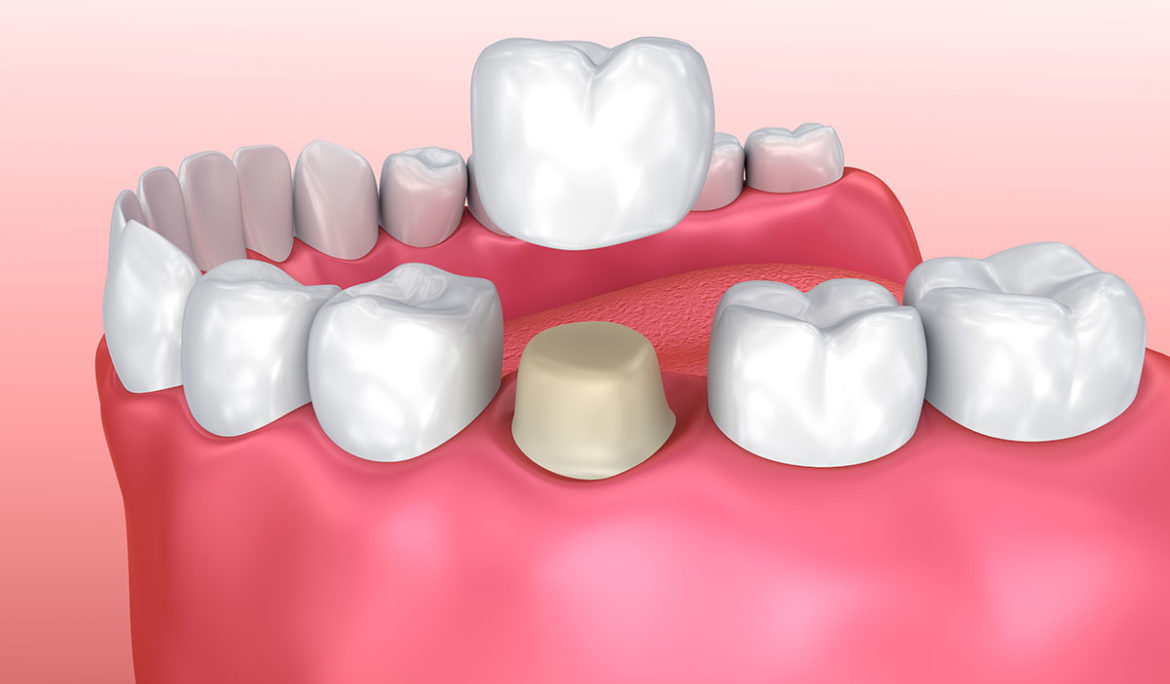 Dental Crown Fell Out, Causes and Treatment Options