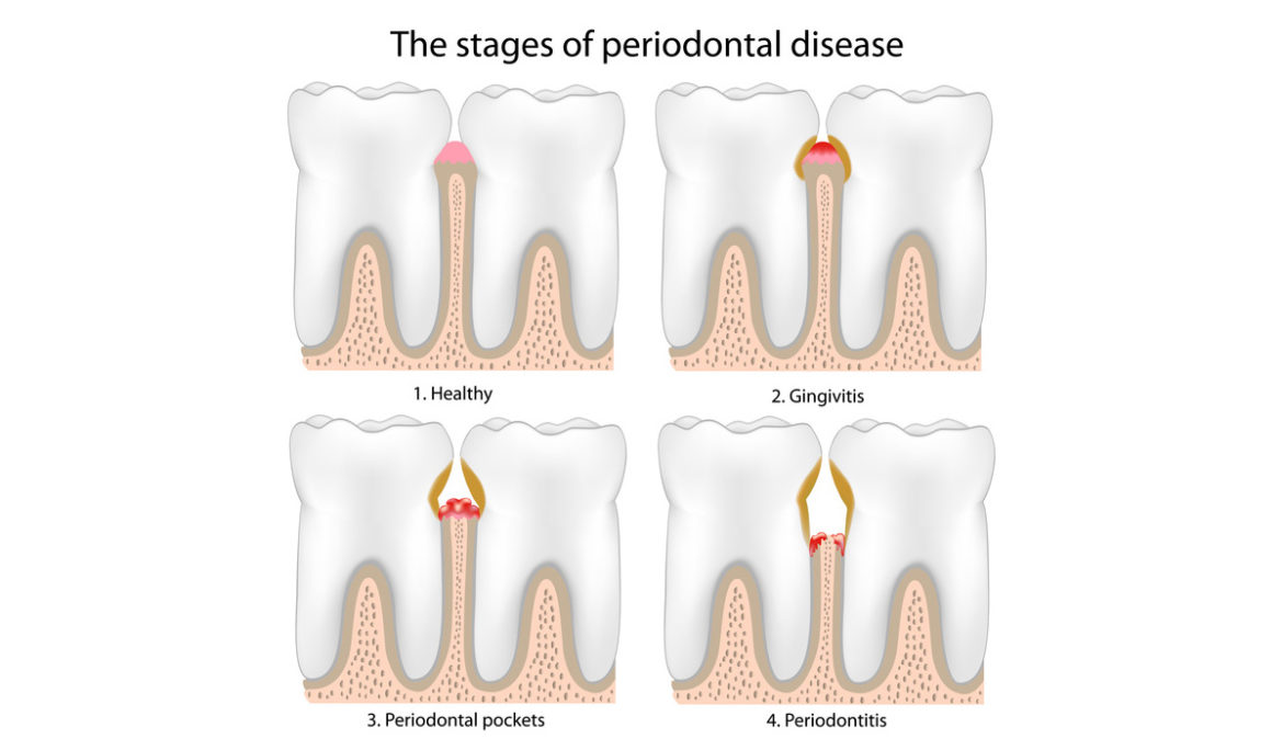 Symptoms of Periodontitis and Treatment Options