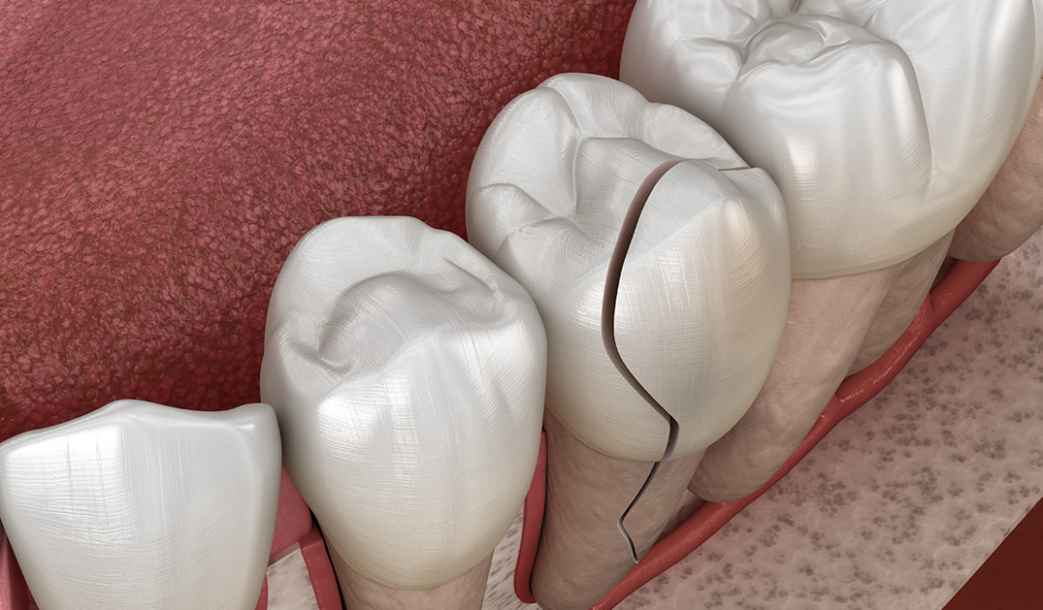 Cracked Tooth Symptoms and treatment options