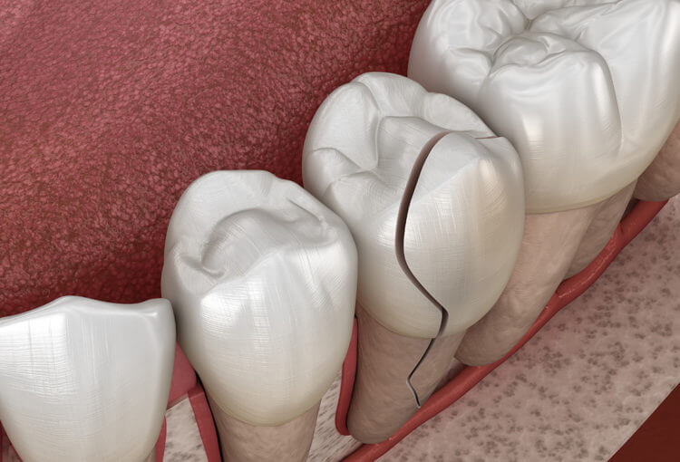 Cracked tooth Symptoms