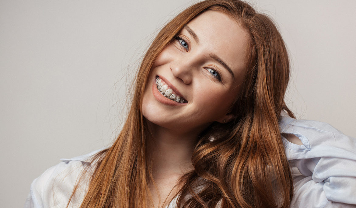 Can You Get Braces with Missing Teeth