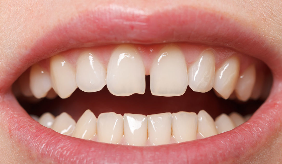 What are Gapped Teeth?