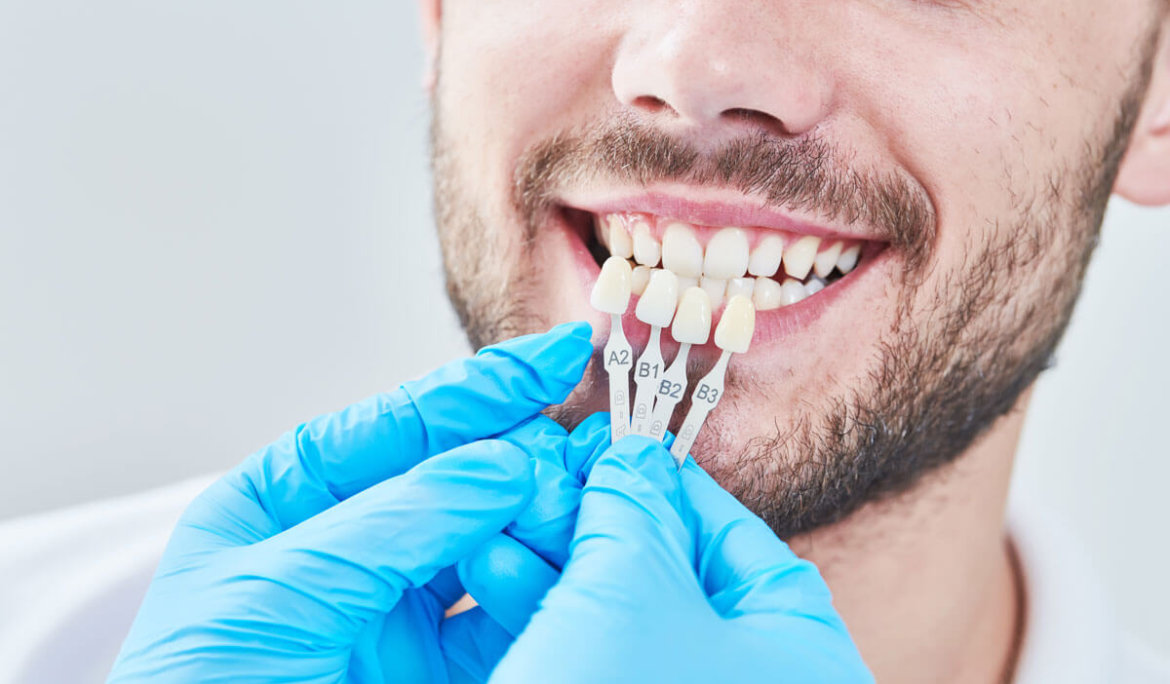 How Veneers Can Change Your Smile